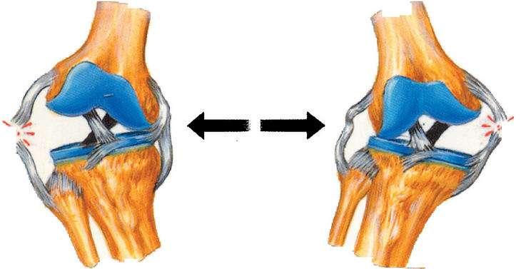 Rotura ligamentos laterales interno y externo
