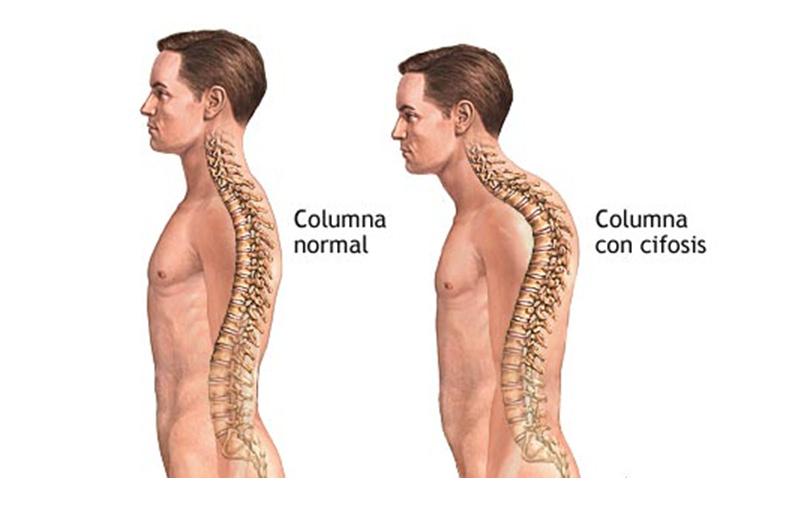 lesiones-espalda-postura (2)